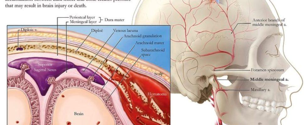 Middle Meningeal Artery Anatomy